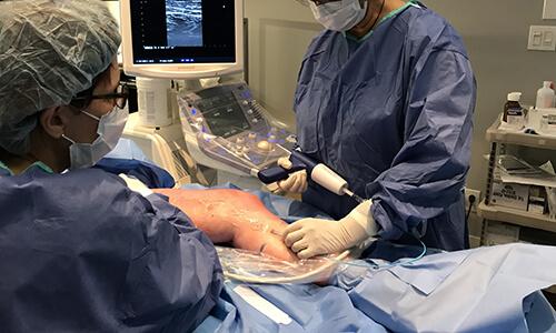 Dr Duclos : Venaseal