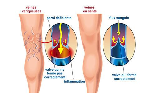 Schéma des veines